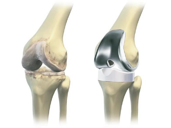 Kunststof voor medische toepassingen, dimensioneringsdelen voor knie- en heupprothesen